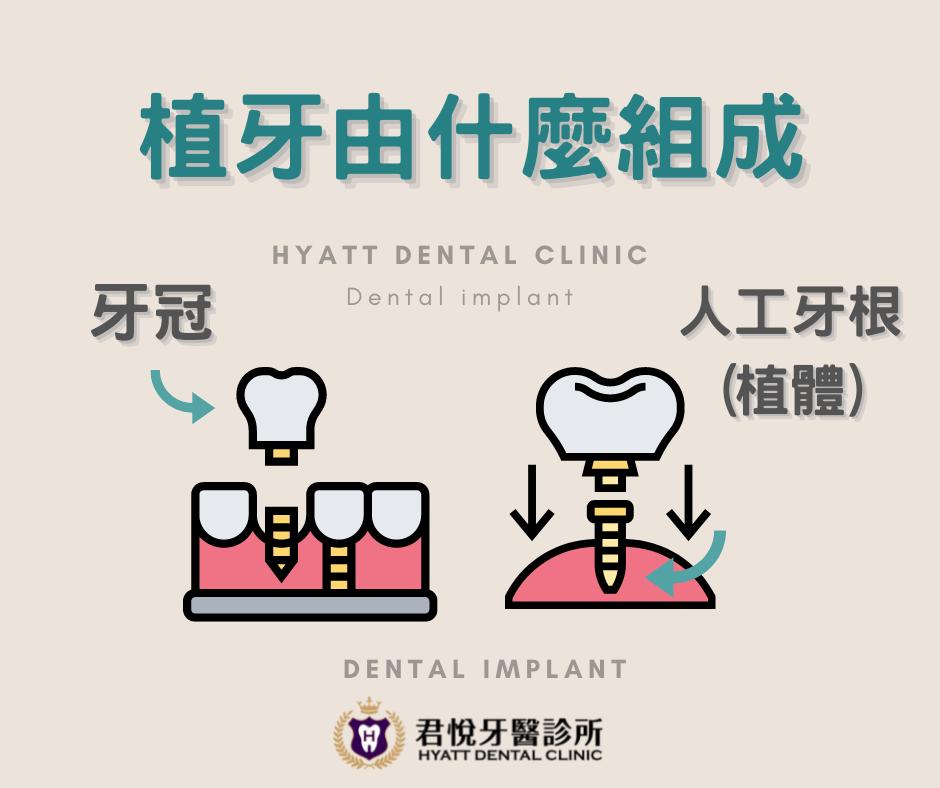 最新消息_植牙!植牙!?到底什麼是⌜植牙⌟?