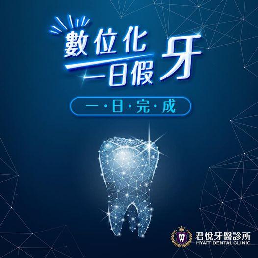 最新消息_君悅牙醫診所-數位化一日假牙