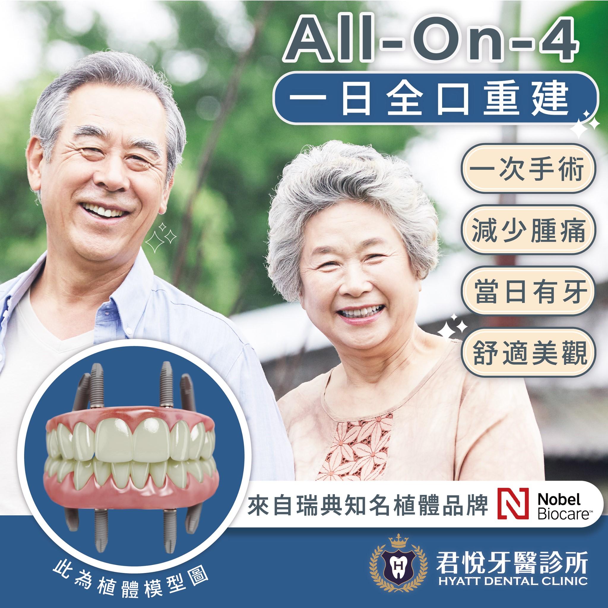 最新消息_【 All on 4 - 一日全口重建 】
